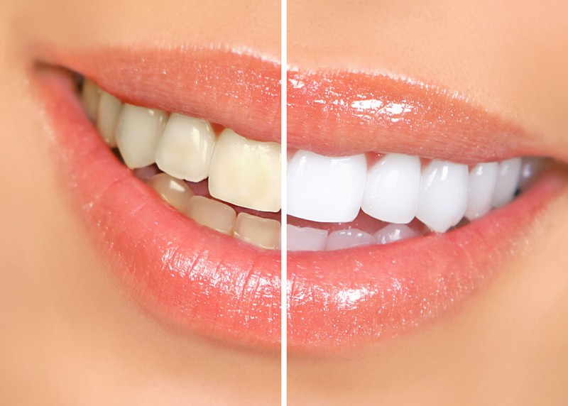 teeth whitening services Linden, NJ